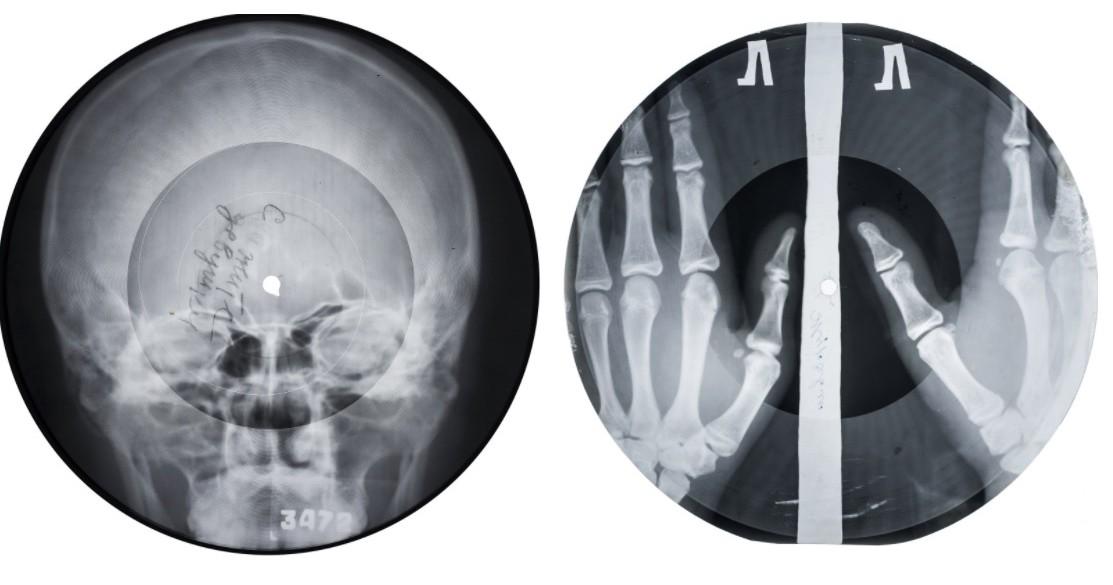 """Рентгенофонограммы возвращаются: Massive attack, Jonsi и др. выпустили записи """"на костях"""" - 1"""