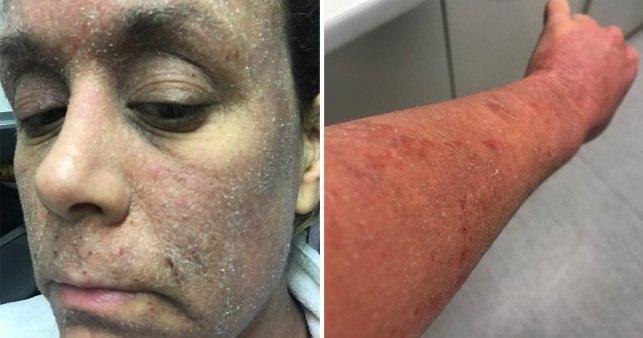 Зависимость от крема для кожи превратила женщину в «зомби»