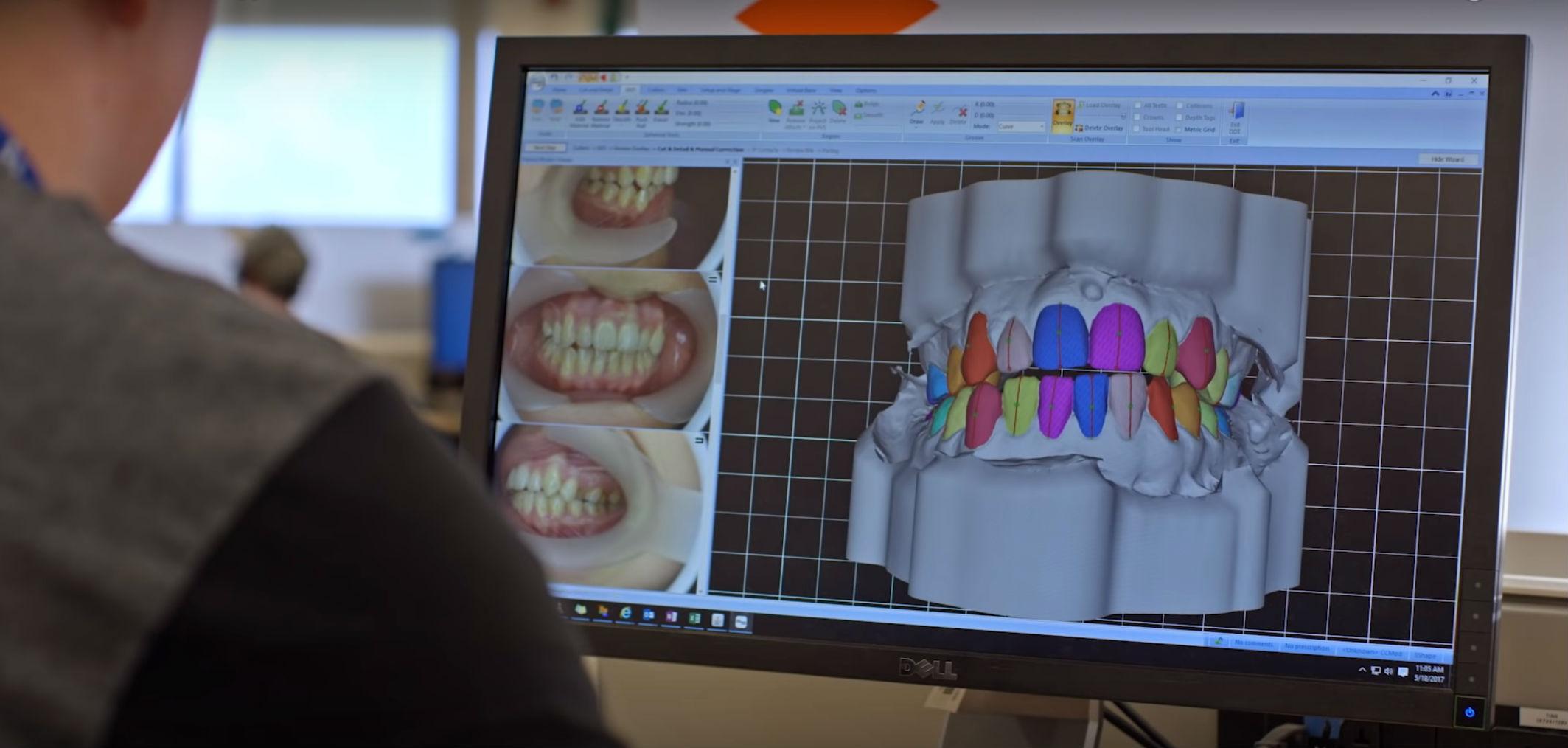Ровные зубы, C++ и математика — как они связаны? Разговор с Align - 5