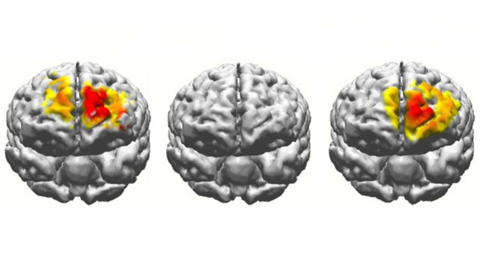 Стимуляция электричеством приводит к значительному улучшению памяти пожилых людей - 1