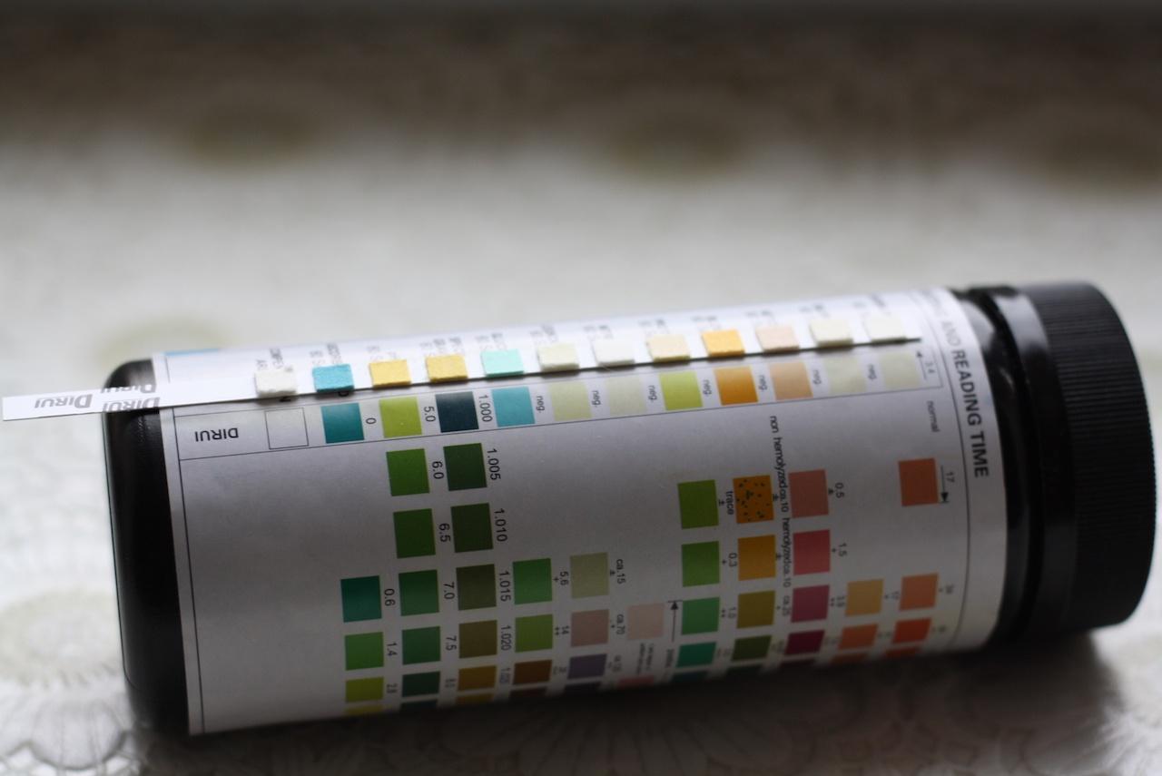 Клинический анализ мочи дома на тест-полосках: плюсы и минусы - 7