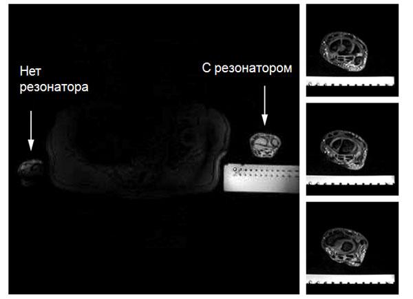 Разбираем магнитно-резонансный томограф II: Метаматериалы в МРТ - 15