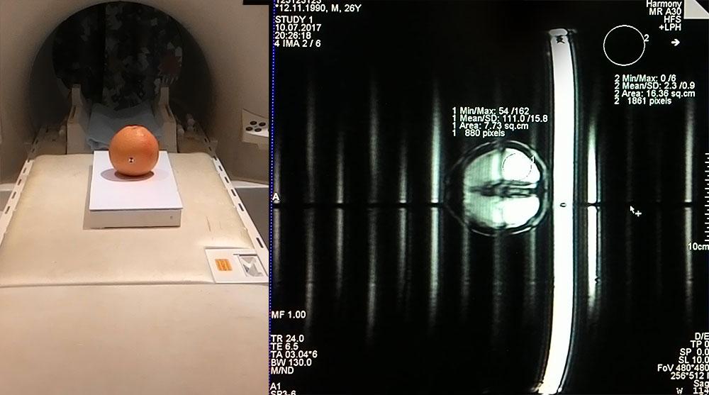Разбираем магнитно-резонансный томограф II: Метаматериалы в МРТ - 5