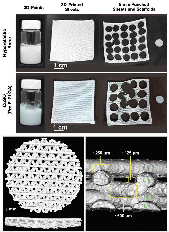 Милые кости 3D: гиперэластичный костный материал для пластики дефектов черепа - 4