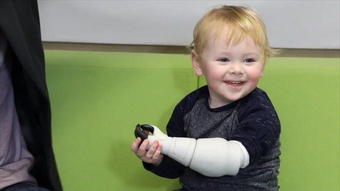 Отец создал бионический протез руки для сына с помощью 3D-принтера и X-Box - 4