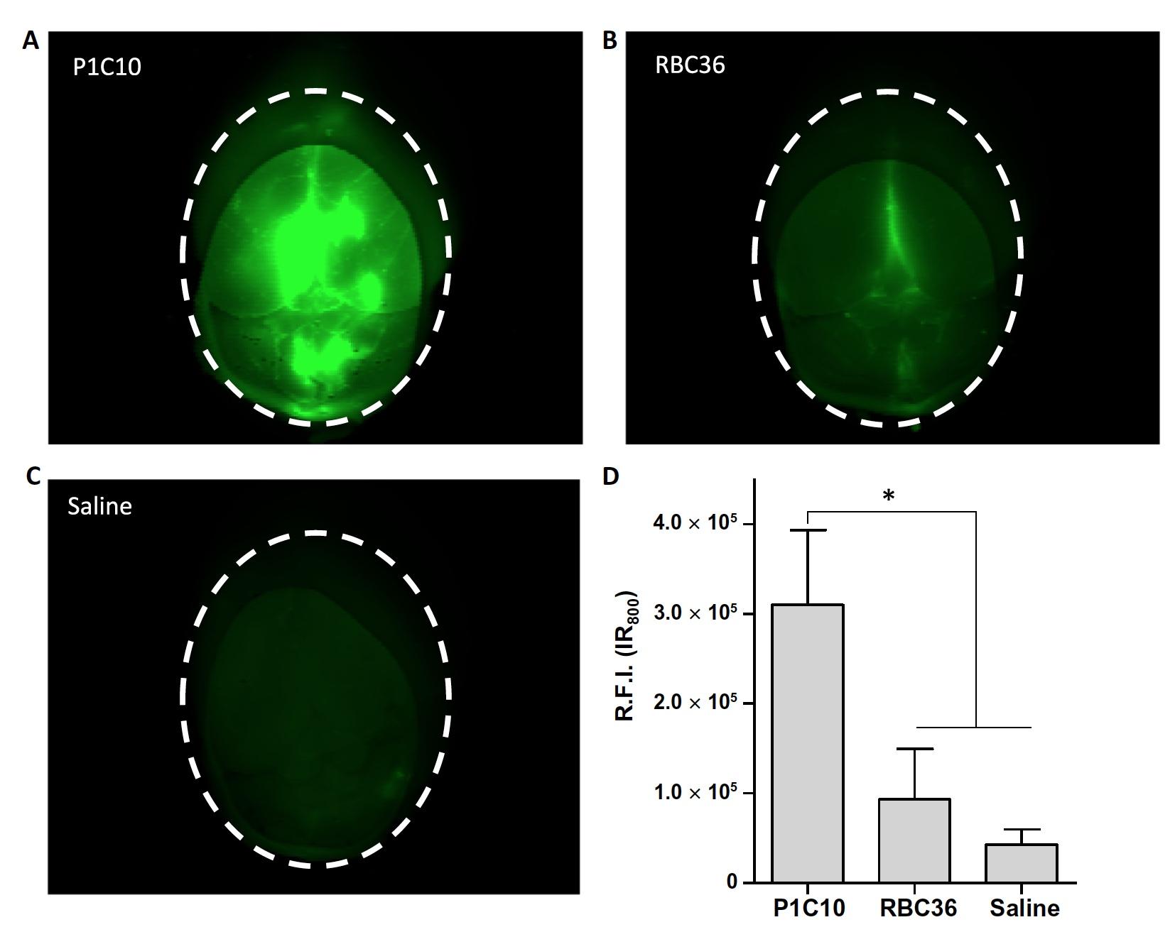 Вред во благо: иммунная система миноги в борьбе с раком головного мозга человека - 7