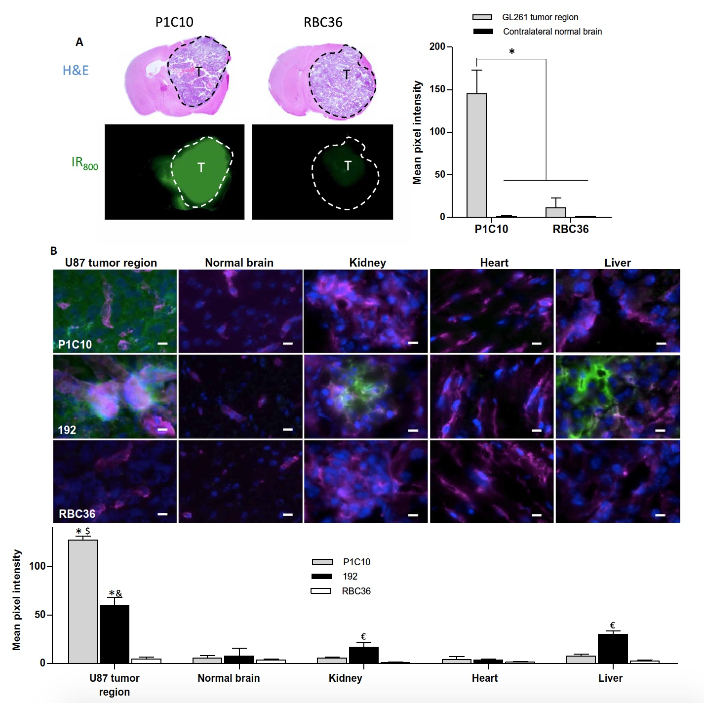 Вред во благо: иммунная система миноги в борьбе с раком головного мозга человека - 8