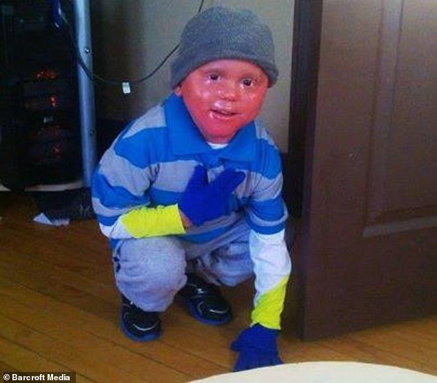 Мальчик сбрасывает кожу как змея: генетическая аномалия