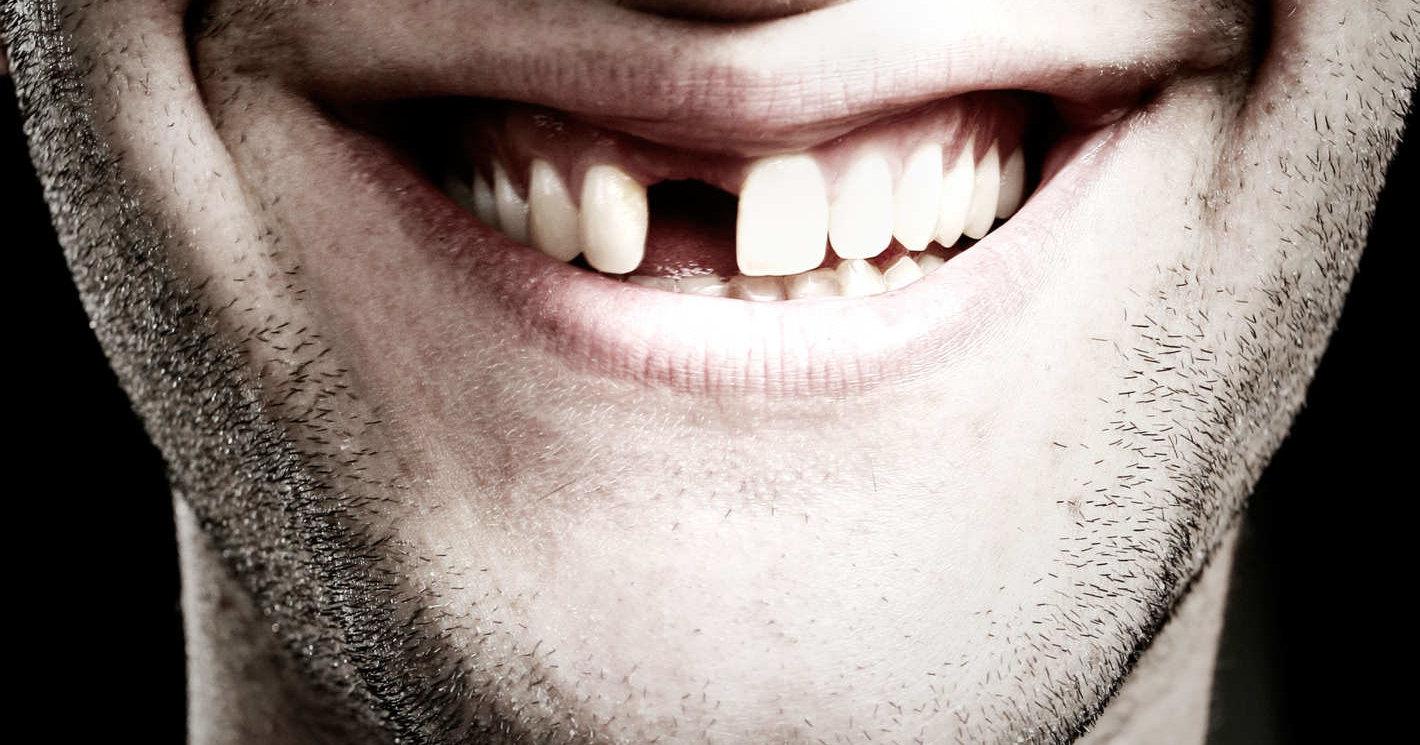 У подмосковного школьника вырос зуб в яичке