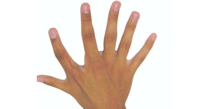 Быть шестипалым не так уж плохо: ученые о полидактилии