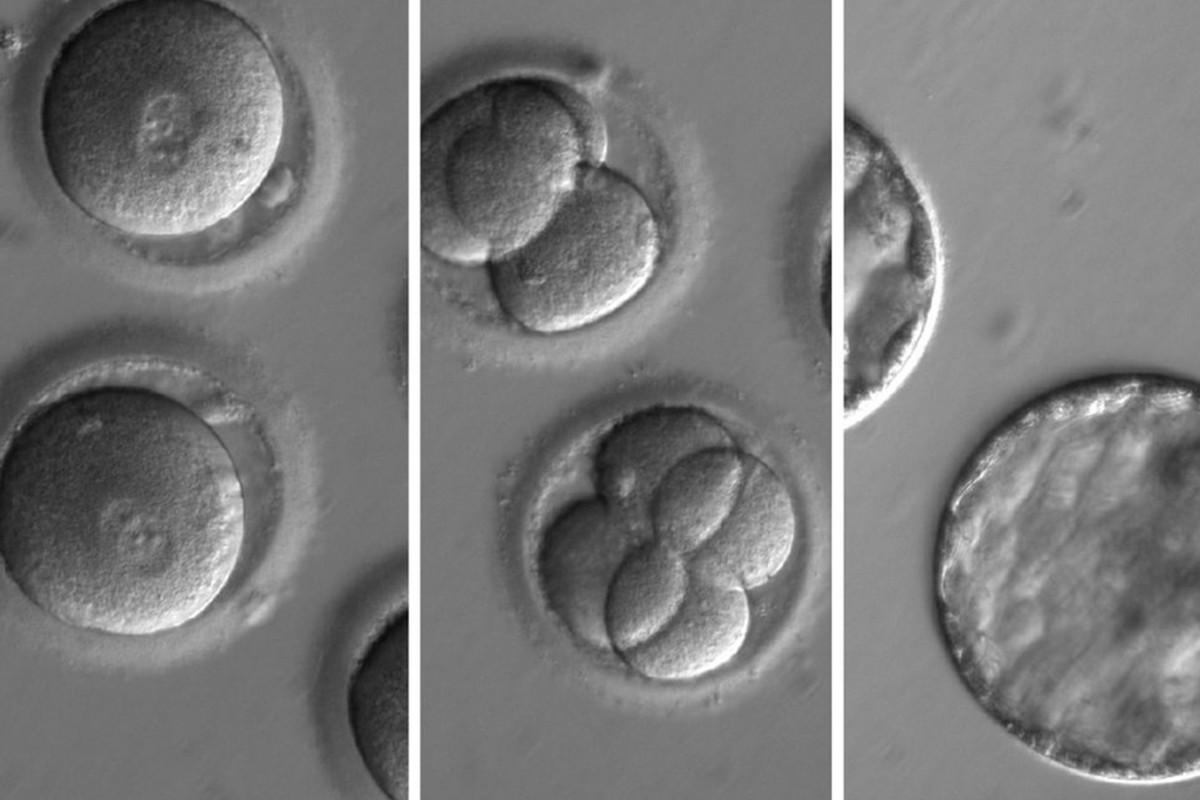Генная инженерия эмбрионов человека станет безопасной и эффективной в течение двух лет - 1
