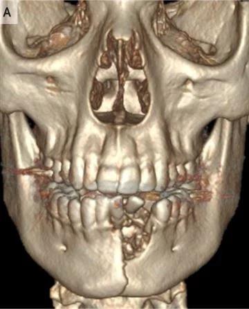 Взорвавшаяся электронная сигарета выбила несколько зубов и сломала челюсть подростку