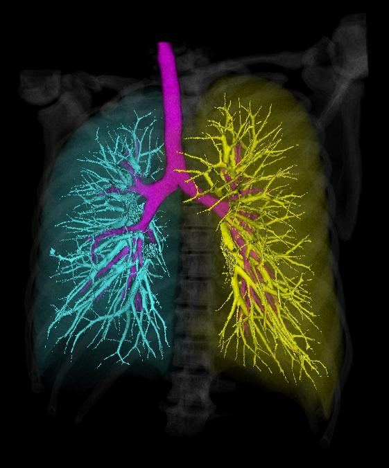 Автоматическая сегментация дыхательных органов - 1