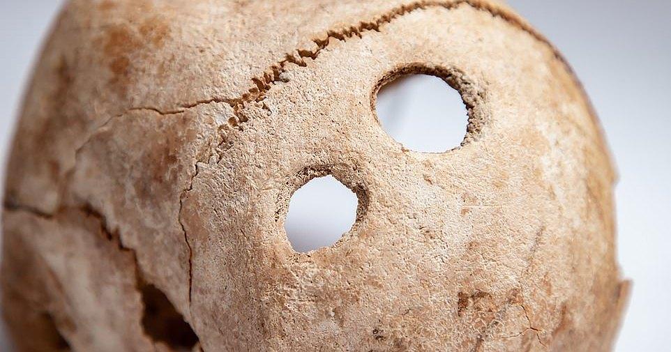 Древнему воину пробили череп, чтобы облегчить страдания