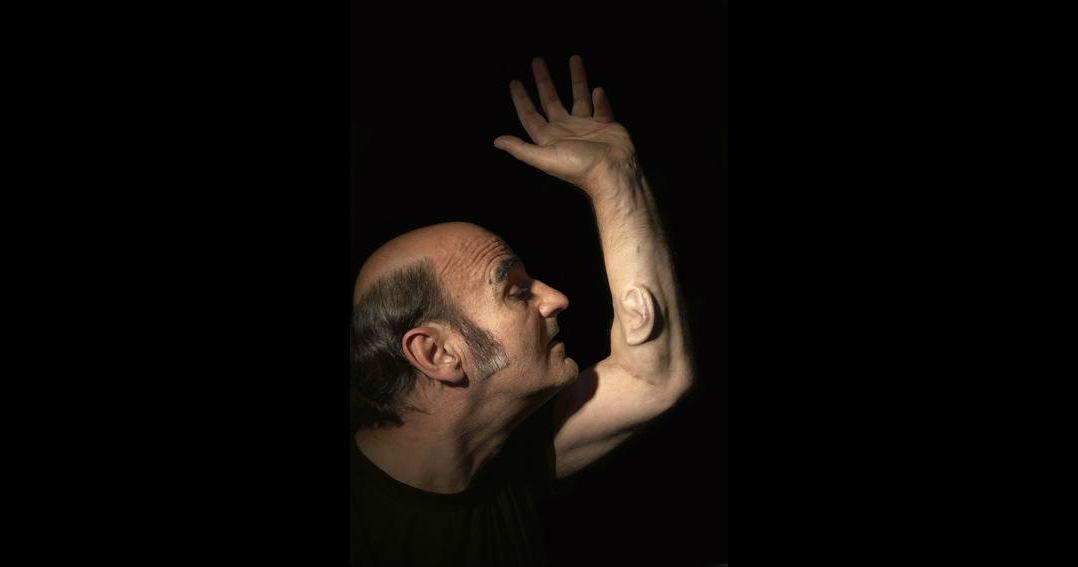 Человек сделал себе третье ухо, чтобы им пользовался весь мир — ради искусства - 1