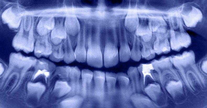Изо рта индийского мальчика удалили больше 500 зубов