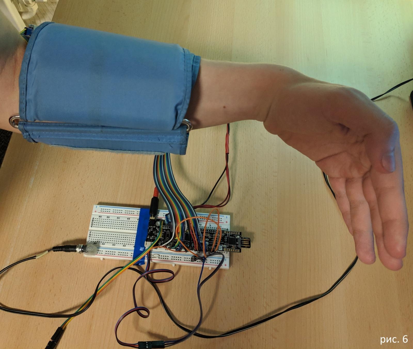 Российский школьник выиграл грант от Google за изобретение устройства, которое помогает глухим озвучивать свои мысли - 7