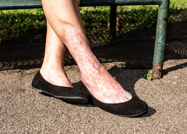 Комариный укус едва не довел человека до потери ноги