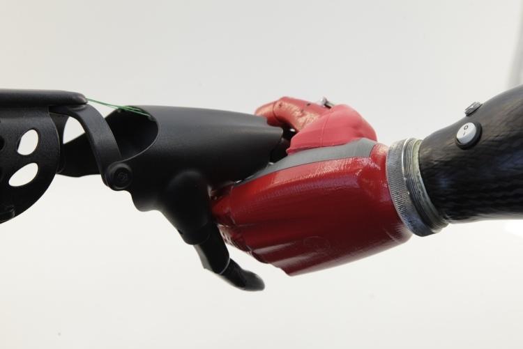 Протезы рук со встроенной телеметрией позволяют удалённо устранять проблемы