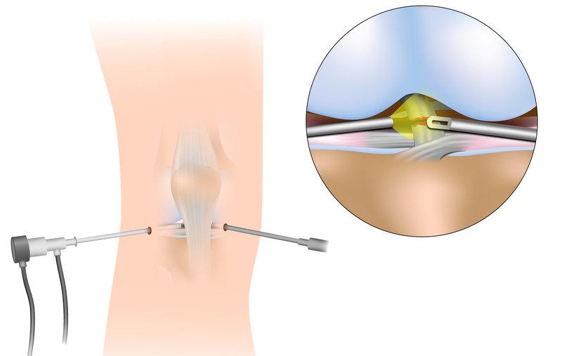 Как ремонтируют порванные связки