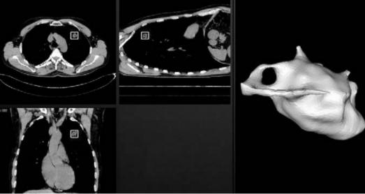 Сегментация опухолевого узелка (слева – bounding box, справа – 3D модель)