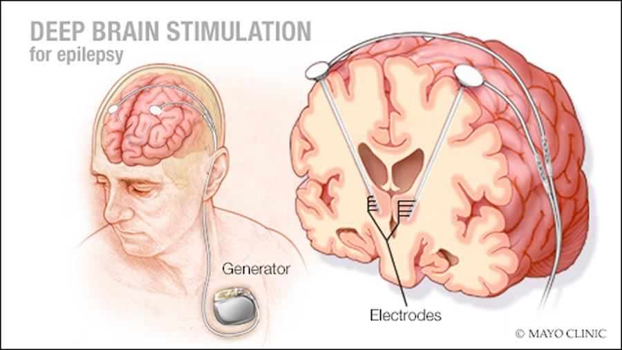 Нейрофизиолог рассуждает о проекте Neuralink и рассказывает о работе мозга «на пальцах» - 3