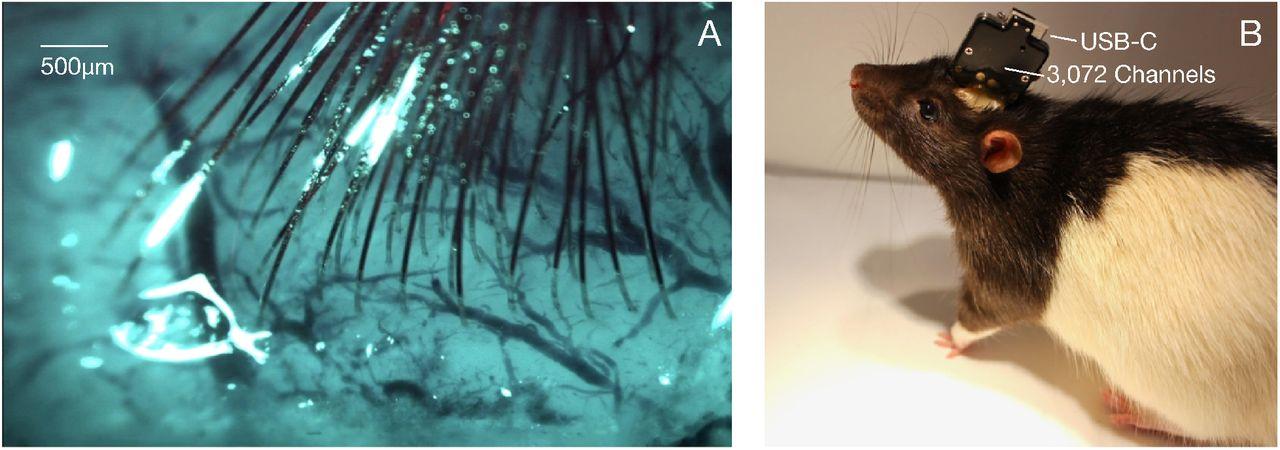 Нейрофизиолог рассуждает о проекте Neuralink и рассказывает о работе мозга «на пальцах» - 4