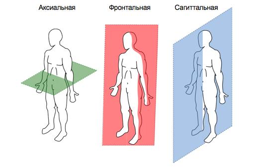 Альтернативный метод транспедикулярной фиксации или как штангенциркуль может заменить целый рентгеноаппарат - 4
