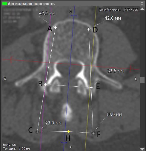 Альтернативный метод транспедикулярной фиксации или как штангенциркуль может заменить целый рентгеноаппарат - 5
