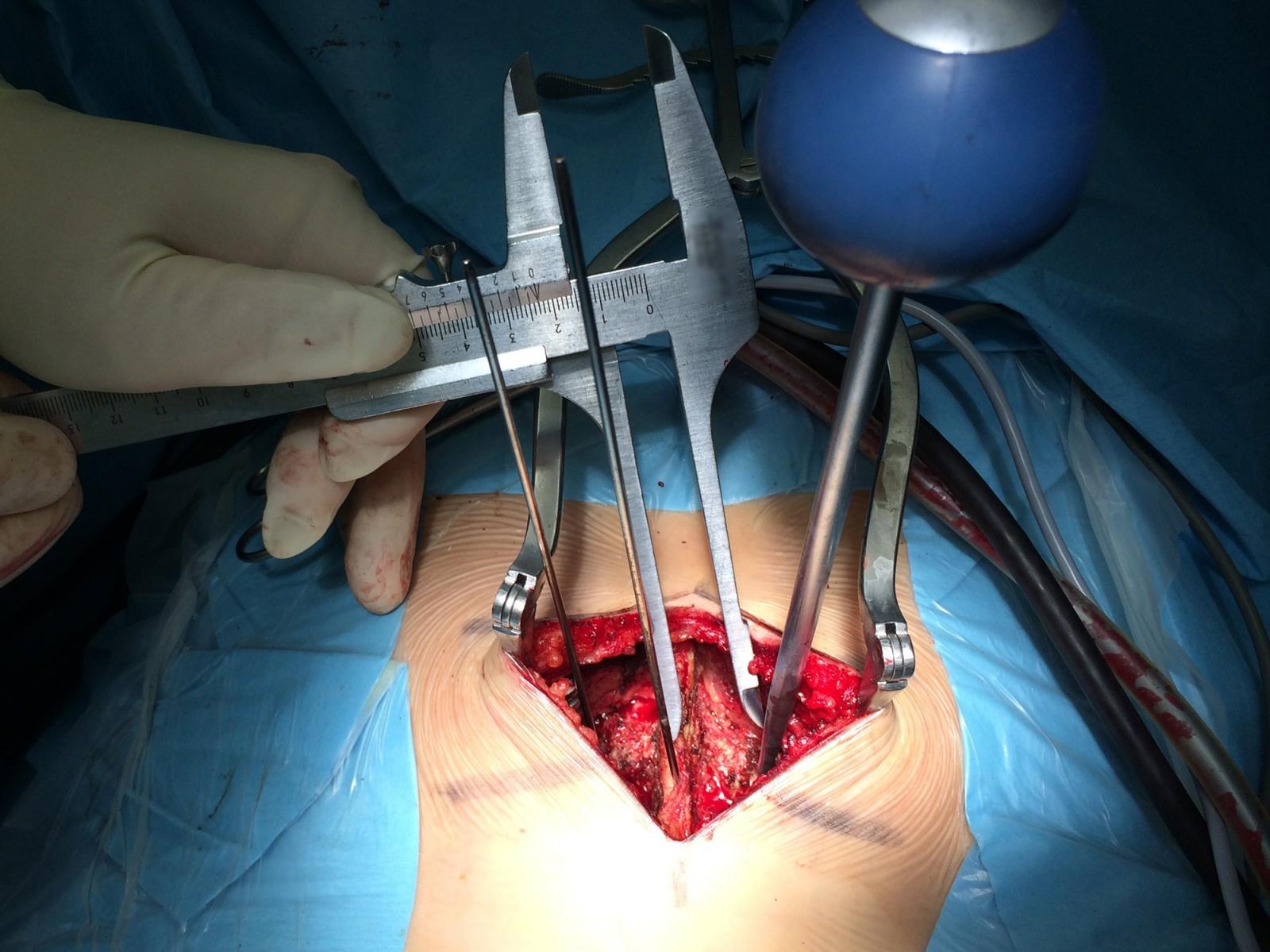 Альтернативный метод транспедикулярной фиксации или как штангенциркуль может заменить целый рентгеноаппарат - 6