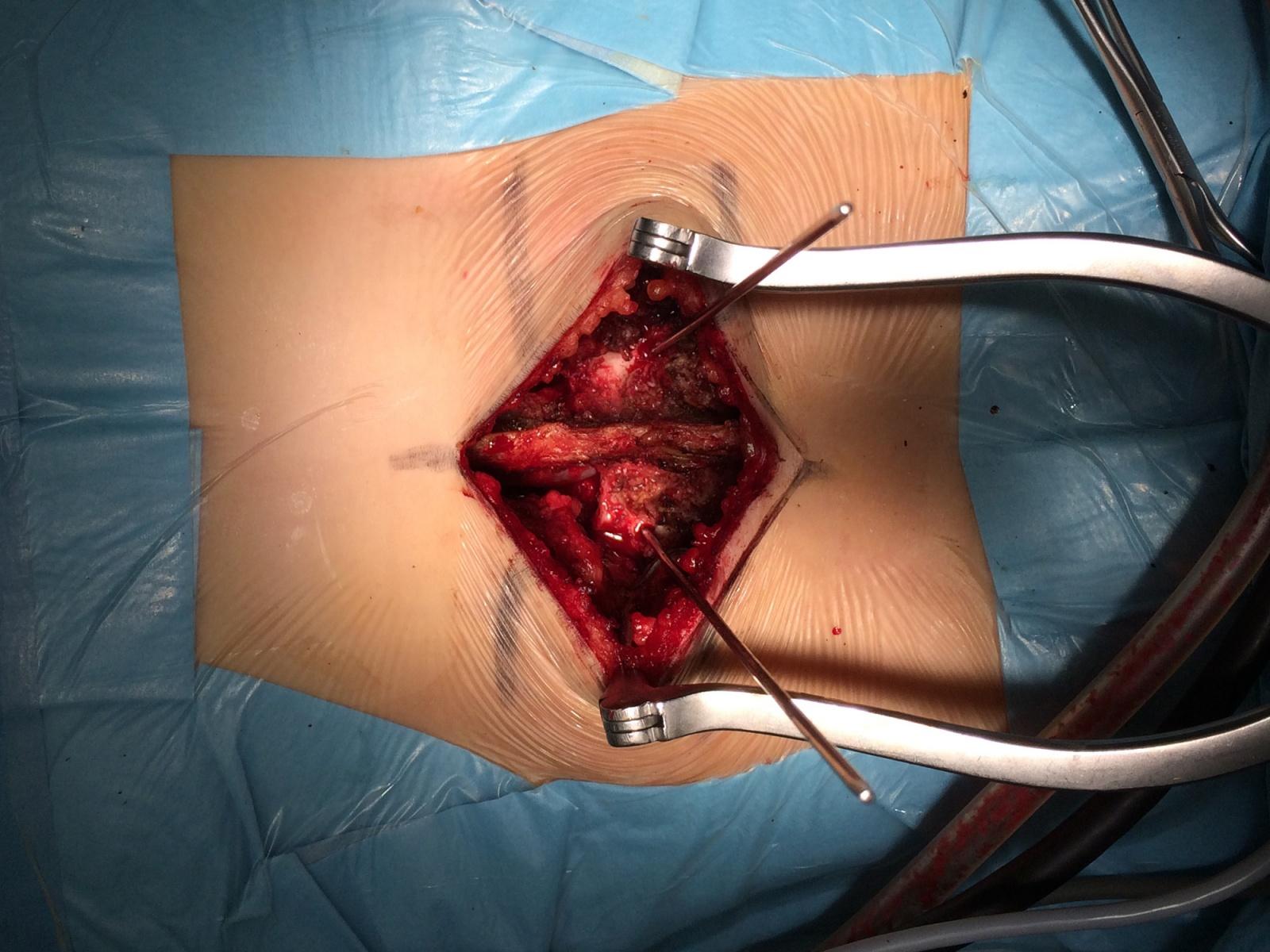 Альтернативный метод транспедикулярной фиксации или как штангенциркуль может заменить целый рентгеноаппарат - 7