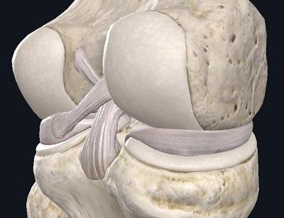 Мениски в коленном суставе — что это, зачем это, как это лечится если повредилось? - 4