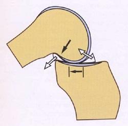 Мениски в коленном суставе — что это, зачем это, как это лечится если повредилось? - 5