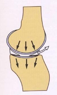 Мениски в коленном суставе — что это, зачем это, как это лечится если повредилось? - 6