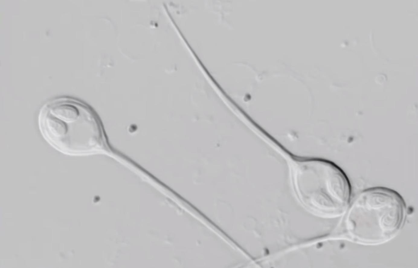 Причуды эволюции: открытие организма, живущего без кислорода - 1