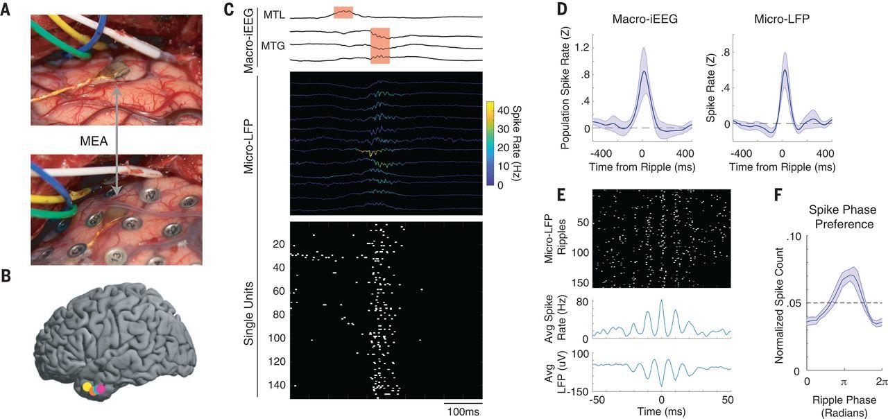 Прояснен механизм памяти: при попытке вспомнить что-то нейроны мозга активируются в последовательности запоминания - 2
