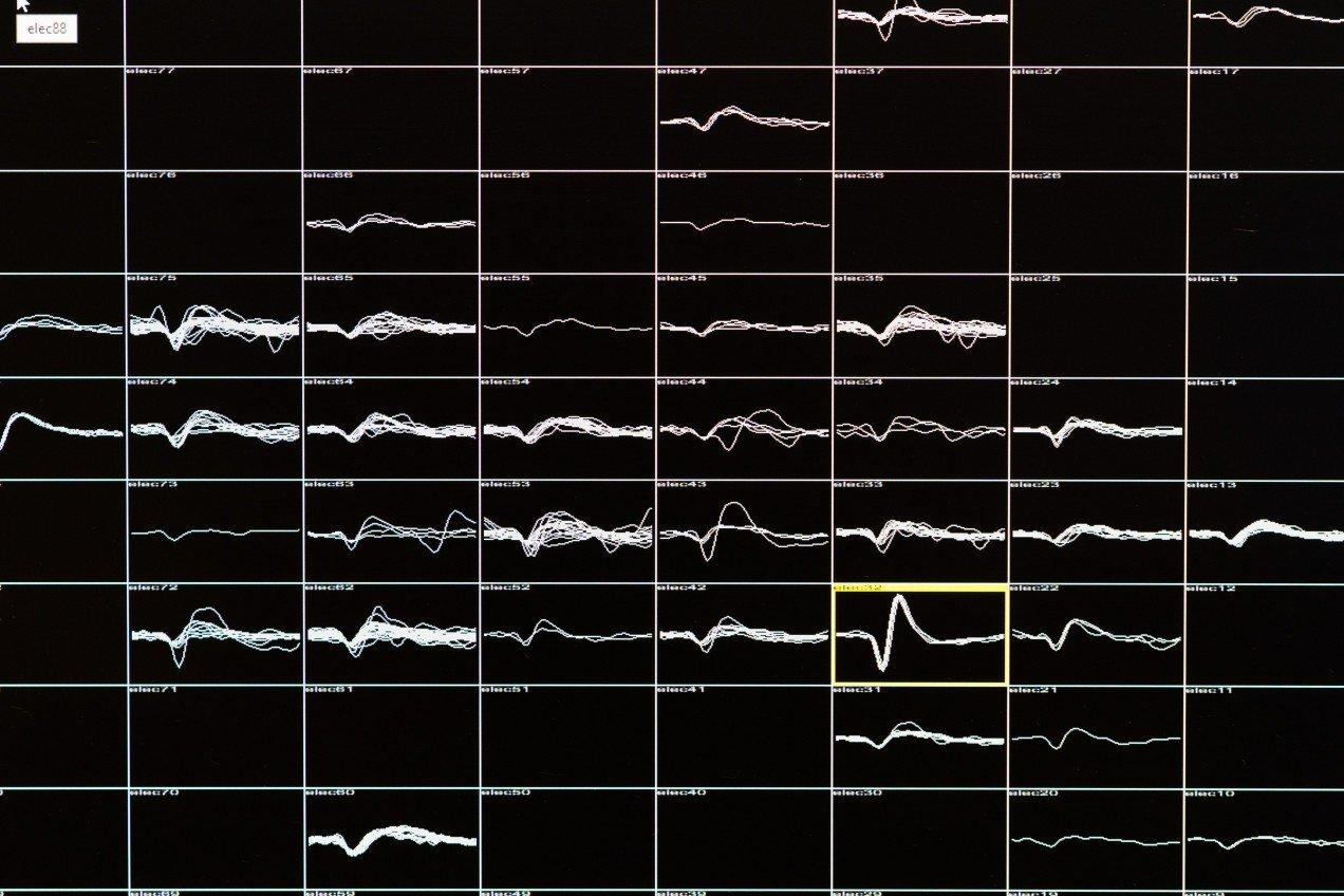 Новый имплантат для слепых подключается напрямую к мозгу - 1