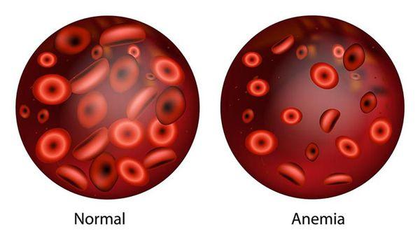 изображение здоровых и больных анемией эритроцитов