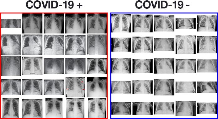 Определяем COVID-19 на рентгеновских снимках с помощью Keras, TensorFlow и глубокого обучения - 3