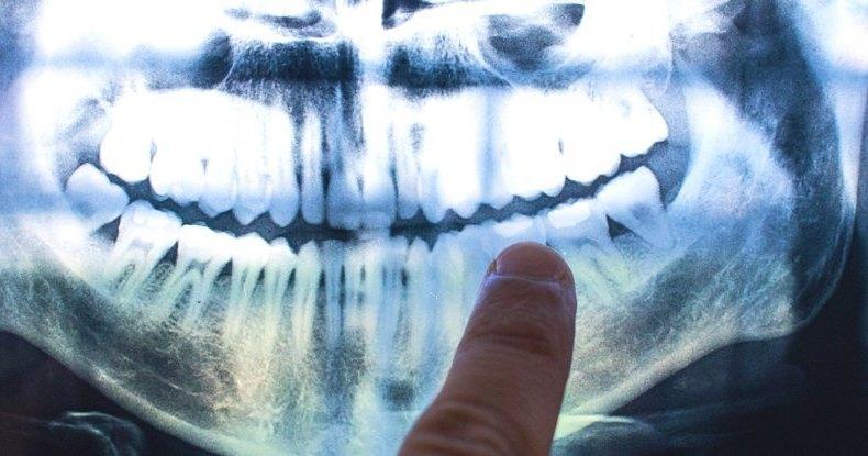 Зубы хранят в себе летопись нашей жизни: необычное открытие