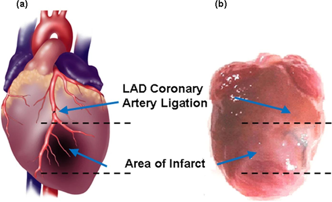 Здоровых людей нет, есть недообследованные: ранняя диагностики ишемической болезни сердца - 4