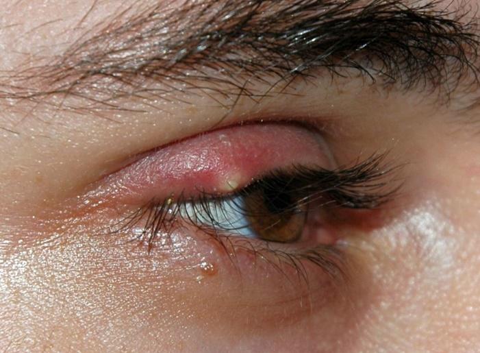 Будни офтальмолога в поликлинике: когда врачей недостаточно - 3