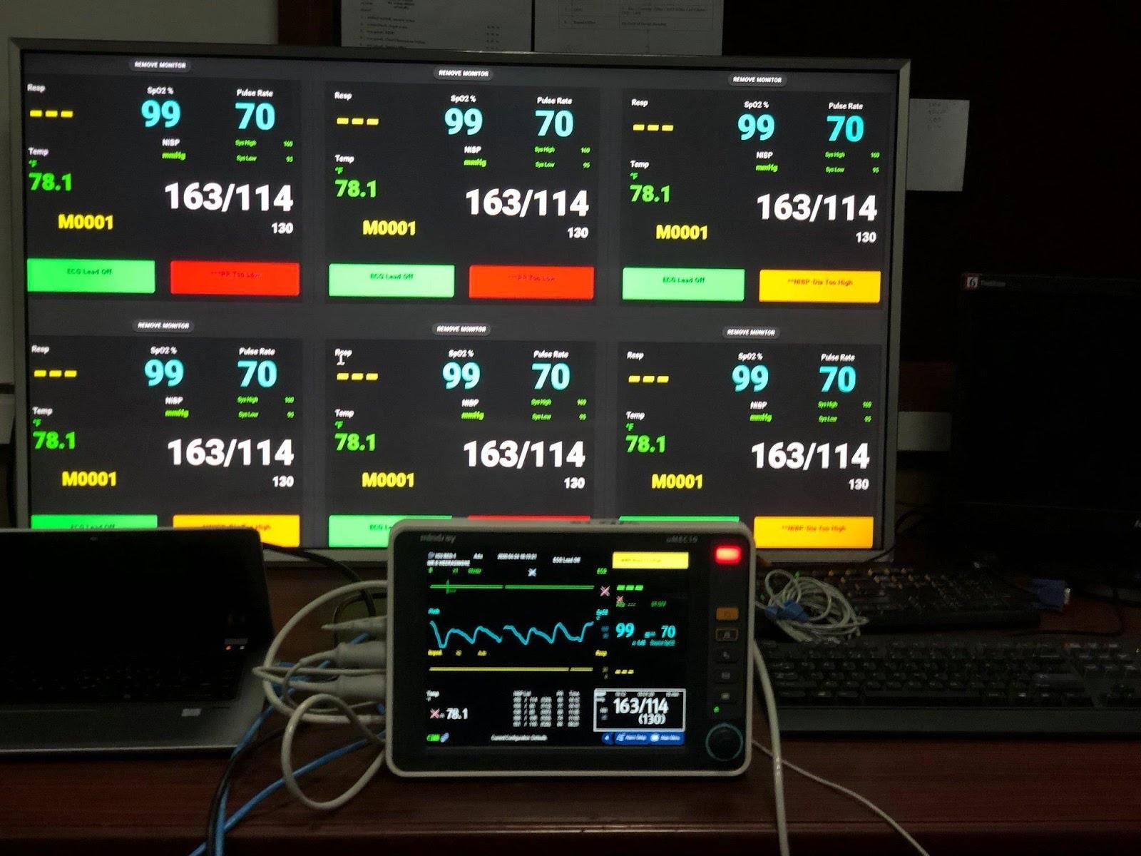 Go, Vue и 3 дня на разработку: система реального времени для мониторинга пациентов - 6