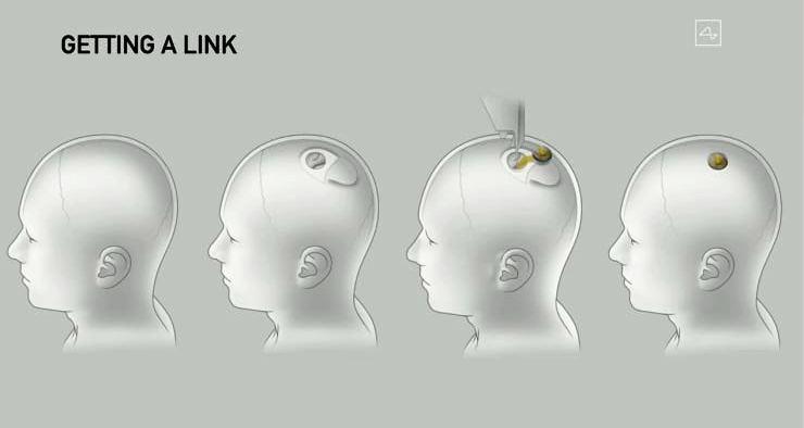 Илон Маск продемонстрировал Neuralink - 4