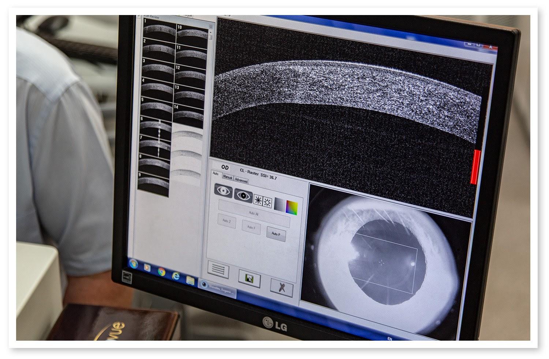 Sub-Zero против катаракты или как восстановить зрение в 60+ - 17