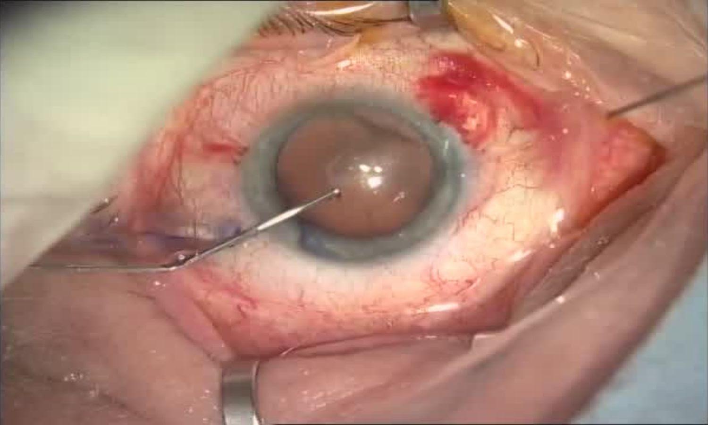 Операция «Глаз»: руки, линза и алмаз. Контрнаступление на катаракту - 10