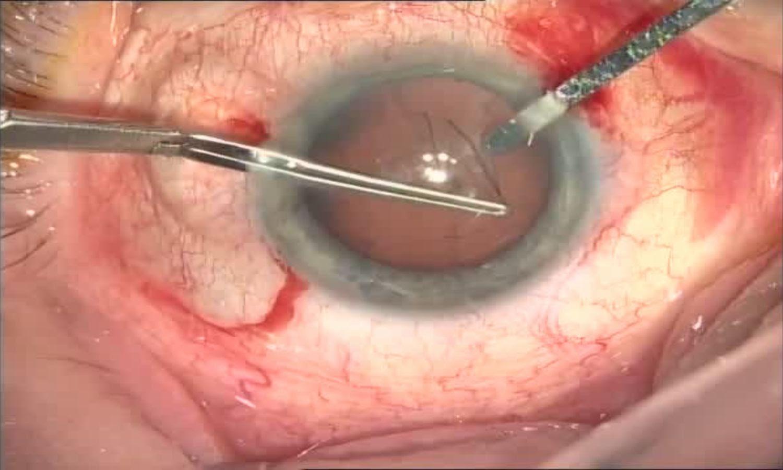 Операция «Глаз»: руки, линза и алмаз. Контрнаступление на катаракту - 13