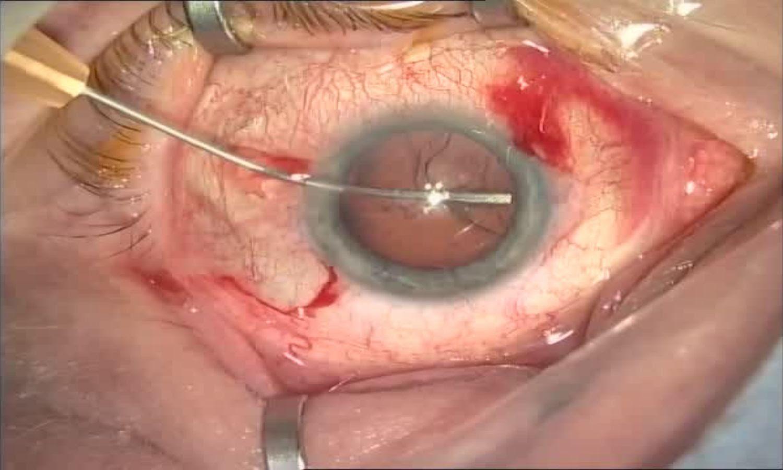 Операция «Глаз»: руки, линза и алмаз. Контрнаступление на катаракту - 15