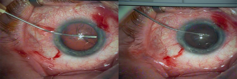 Операция «Глаз»: руки, линза и алмаз. Контрнаступление на катаракту - 20