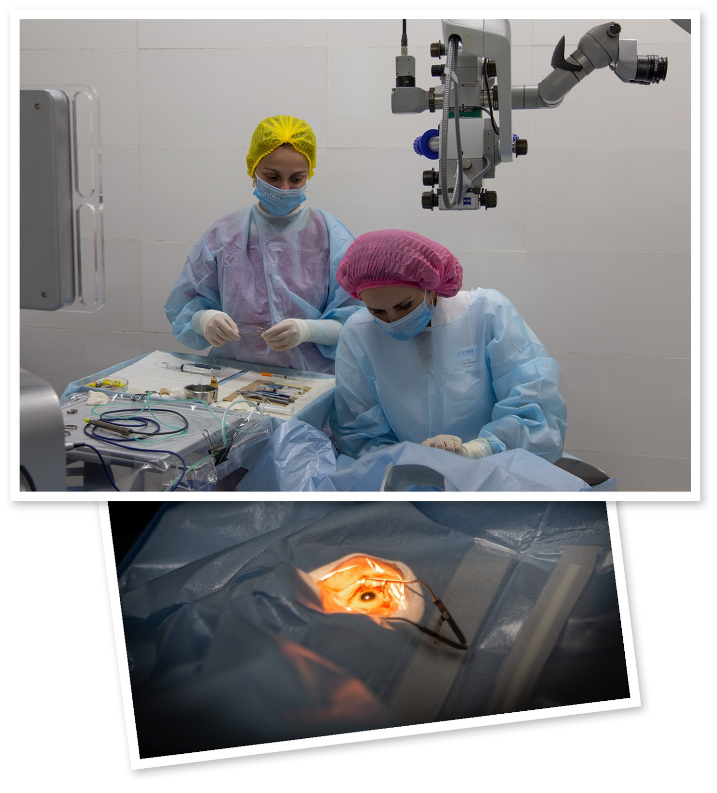 Операция «Глаз»: руки, линза и алмаз. Контрнаступление на катаракту - 4